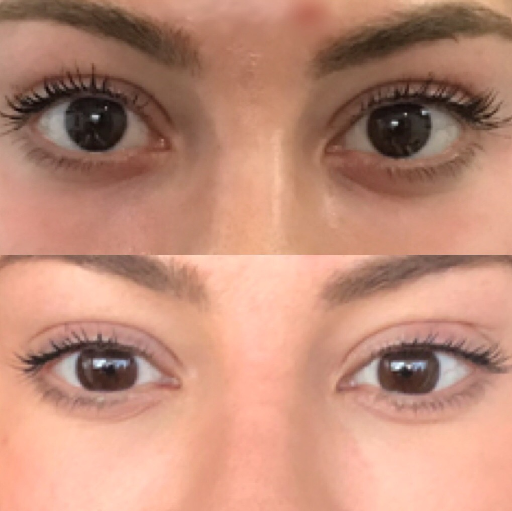 PRP for Under Eye Circles