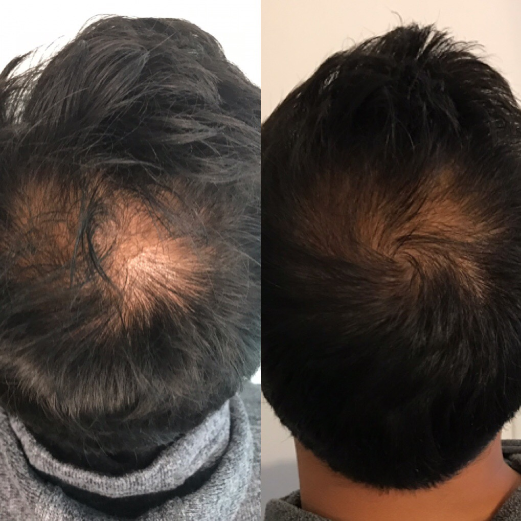 before & After two PRP Sessions for hair restoration