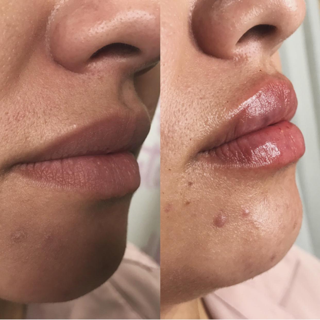 Juvederm Ultra Lip Filler