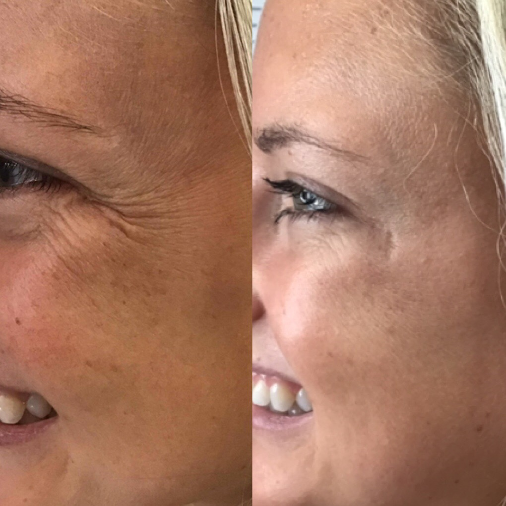 15 units of botox total for crows feet