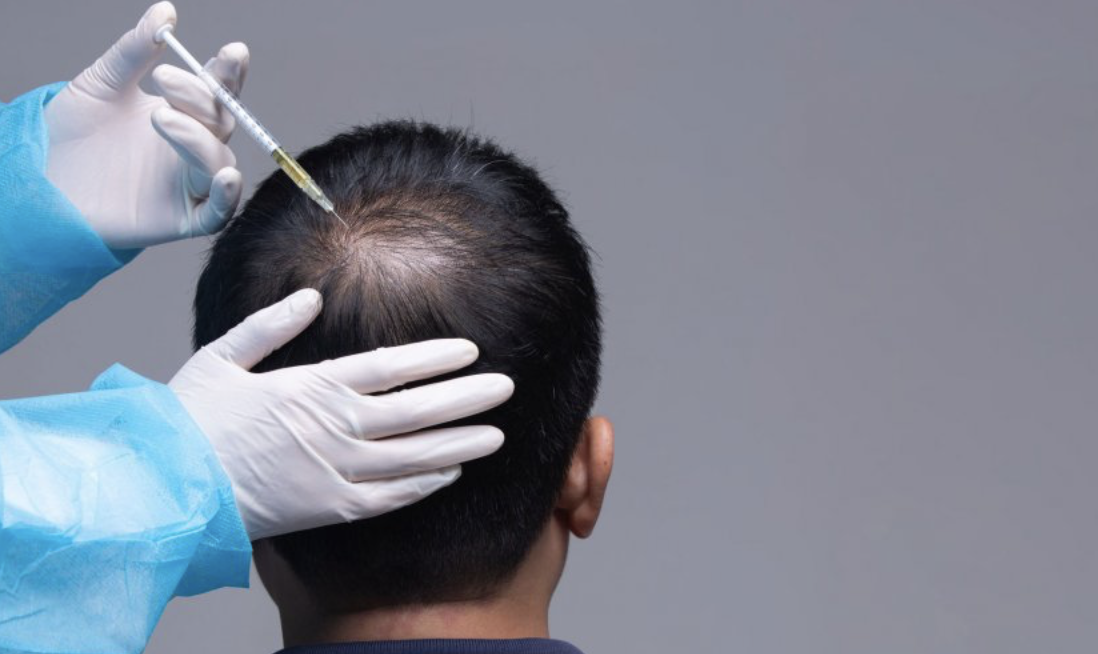 PRP for Hair loss - learn more