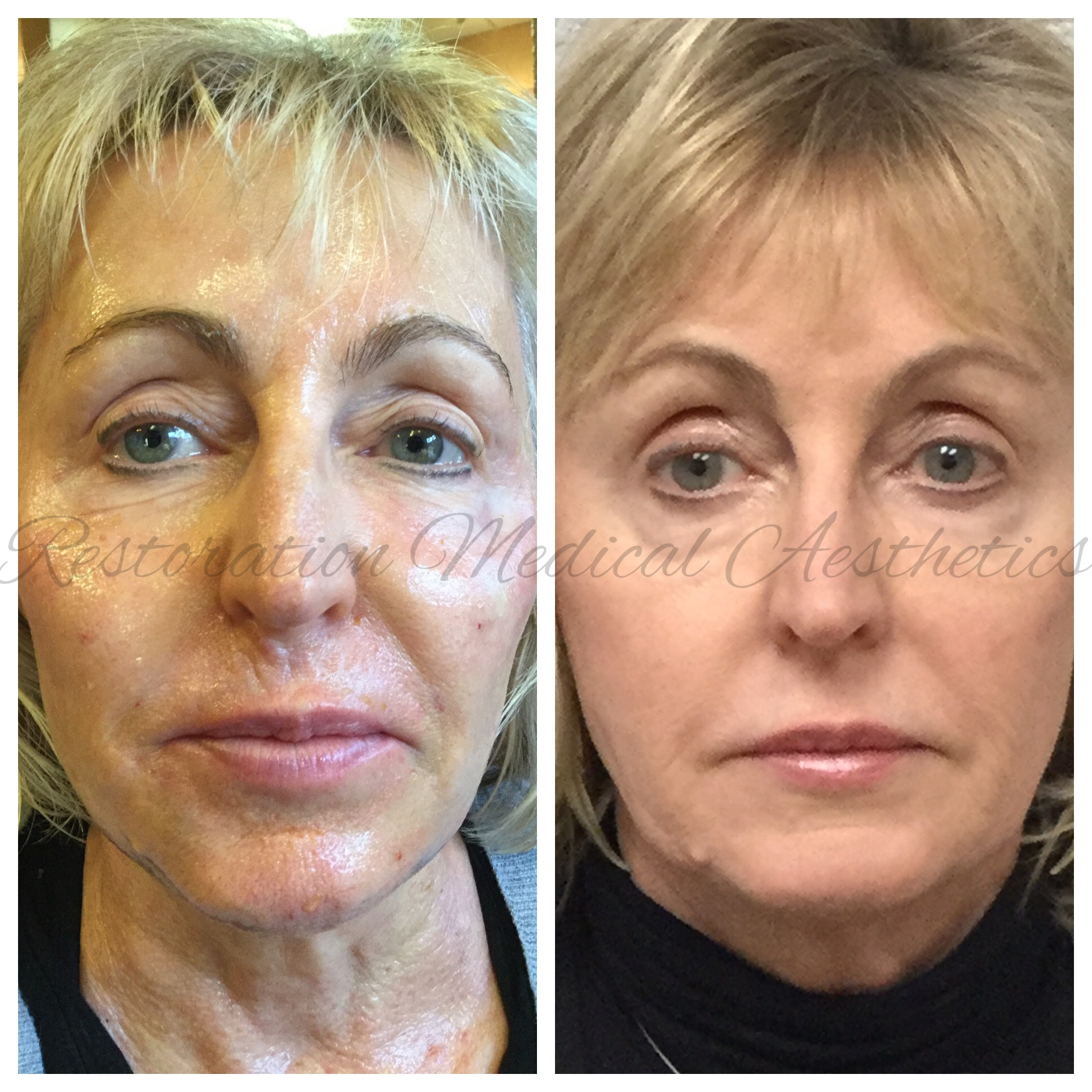 - BEFORE AND 3 WEEKS AFTER 1 TREATMENT