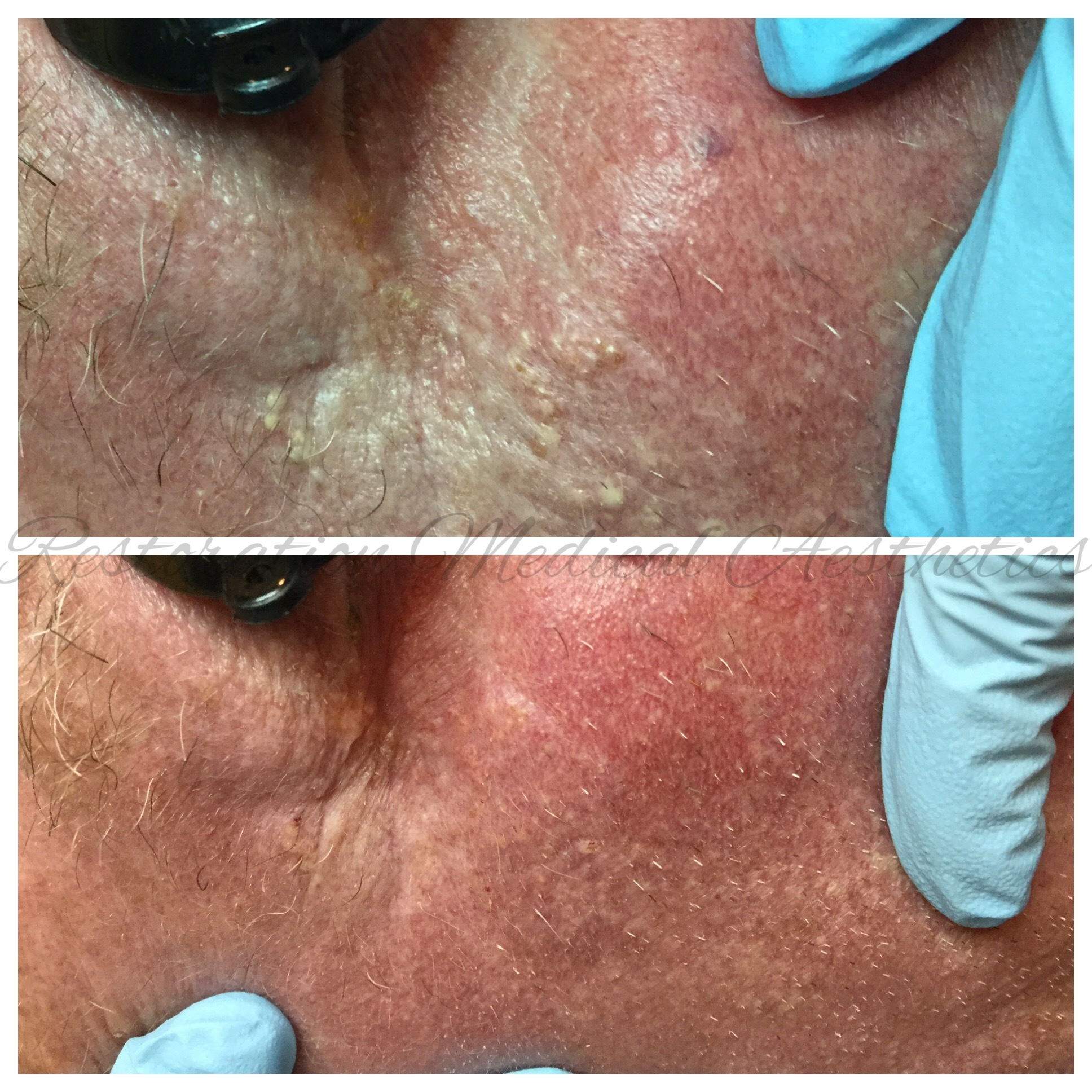 - BEFORE AND AFTER HYDRAFACIAL WITH EXTRACTIONS