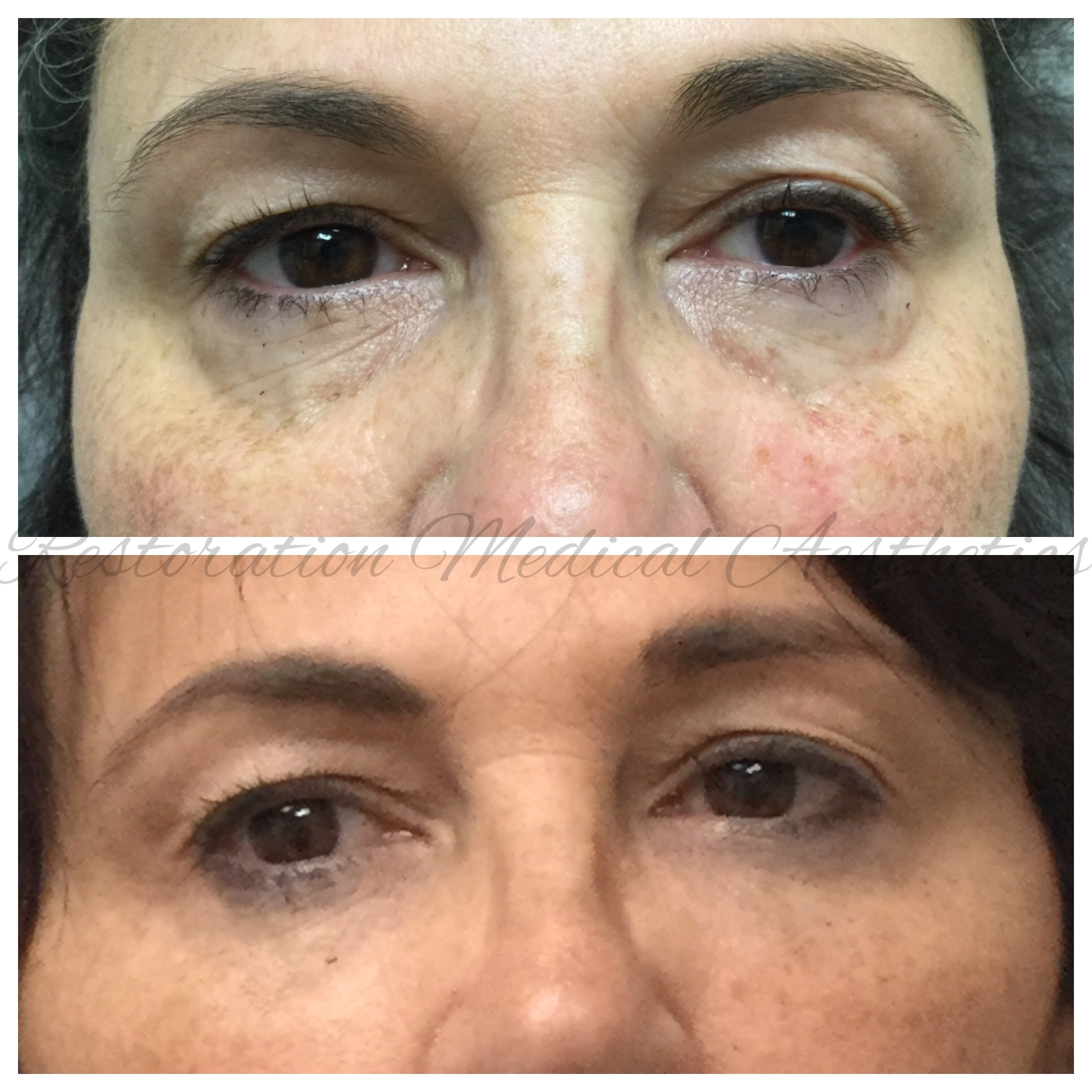- BEFORE AND 2 WEEKS AFTER FILLER UNDER THE EYES