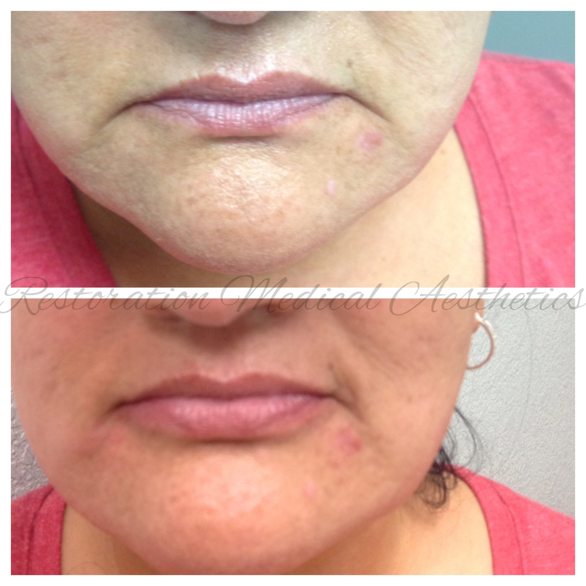 - BEFORE AND IMMEDIATELY AFTER FILLER IN CORNERS OF MOUTH