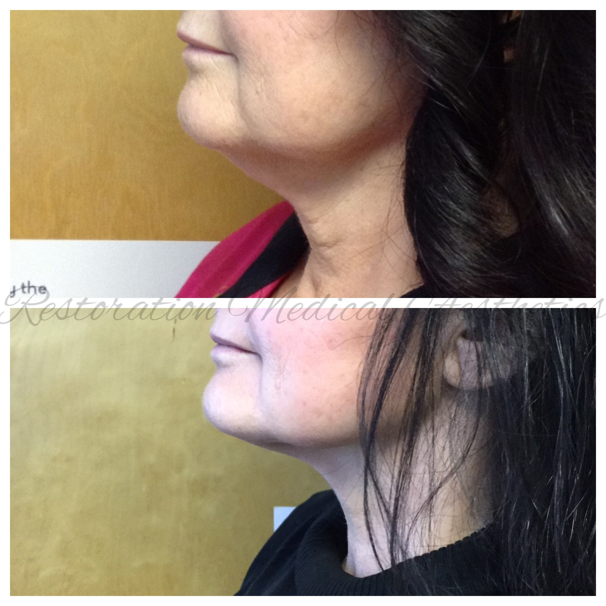 - BEFORE AND AFTER 8 TREATMENTS