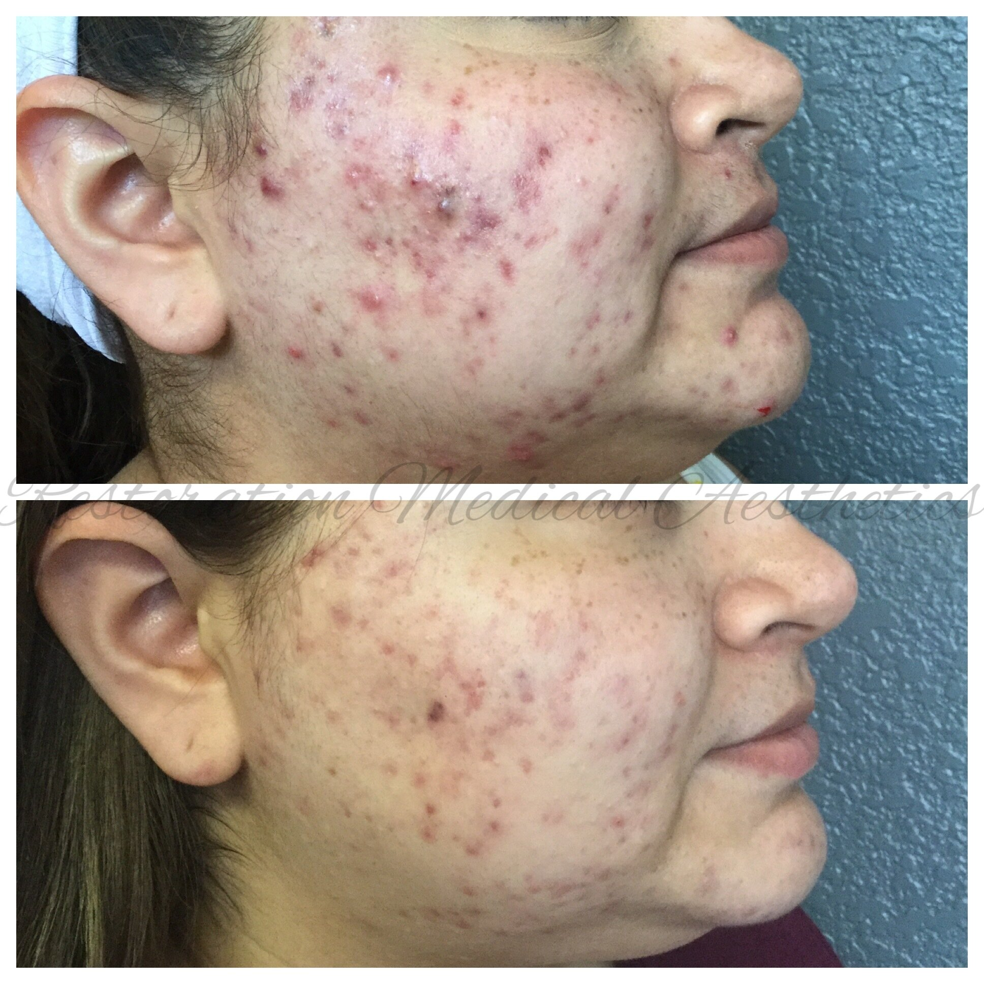 - BEFORE AND 10 WEEKS AFTER 2 TREATMENTS RIGHT SIDE VIEW