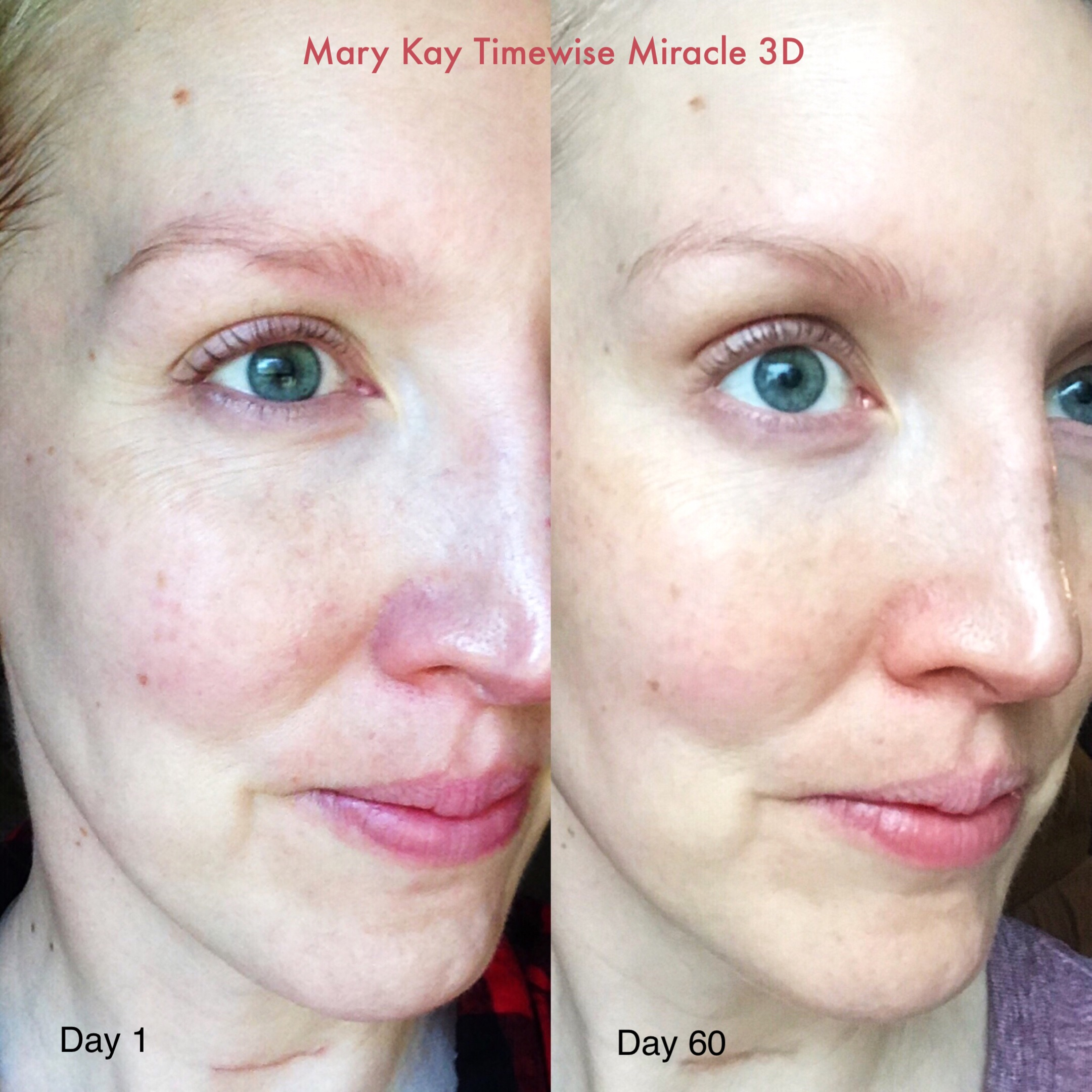Day 1 - Day 60 using Mary Kay Timewise Miracle 3D Skincare Morning + Night. This photo is unfiltered and taken in natural light.