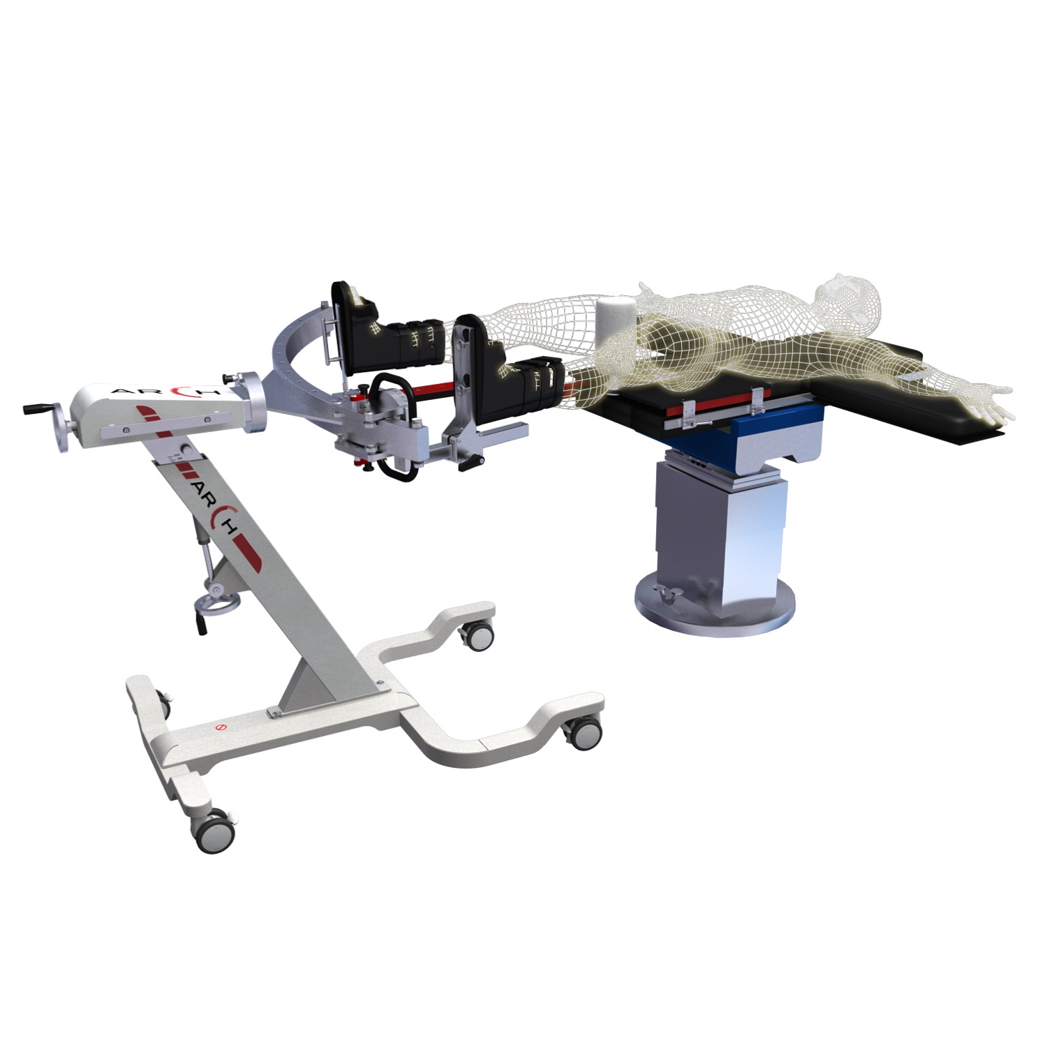 In the model above, the ARCH table is shown setup for femoral fractures. In this configuration, the C-Arm has plenty of room to maneuver around the device and general surgery table, allowing for x-ray visualization from almost all sides.