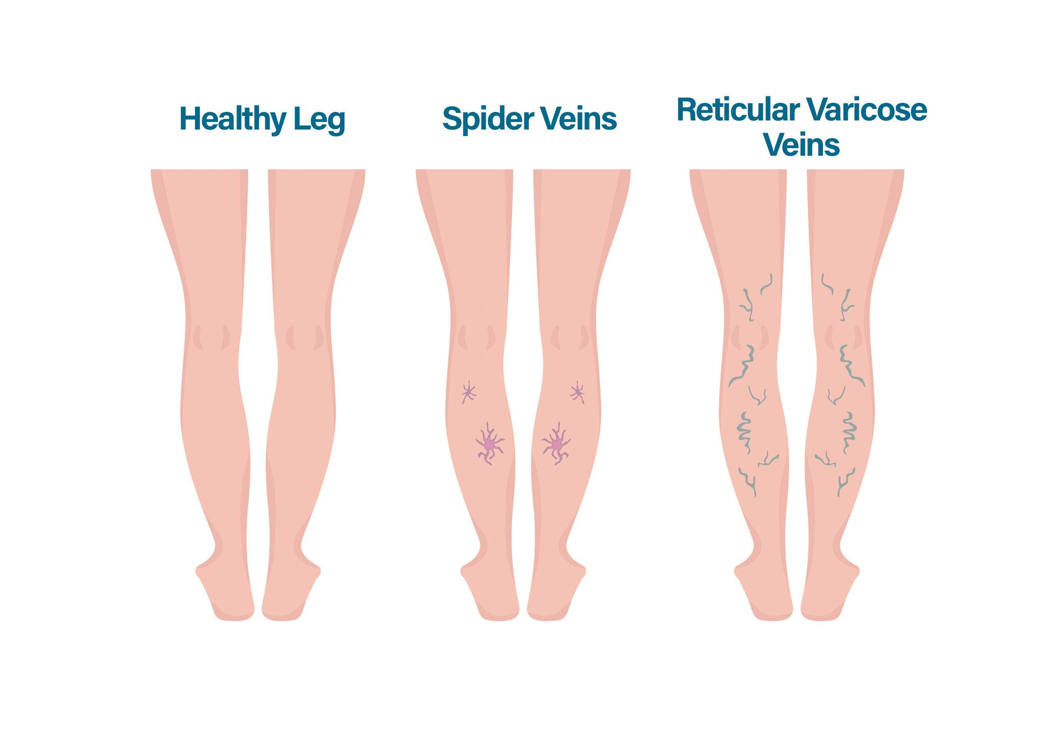 Simptome ale varicelor traxivazină eficientă