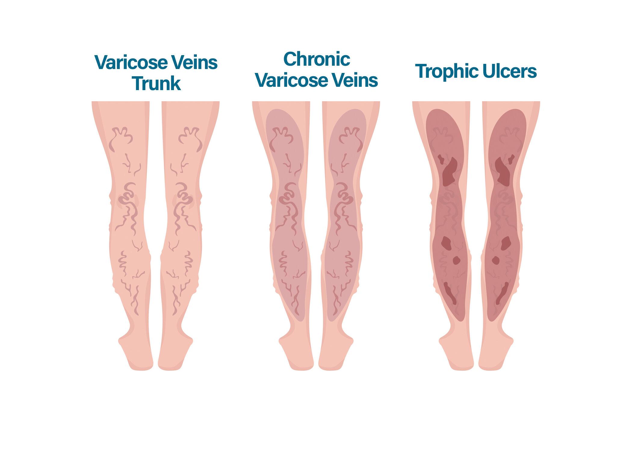 colanți dimensiuni varicoase este posibilă pomparea mușchilor în varicoză