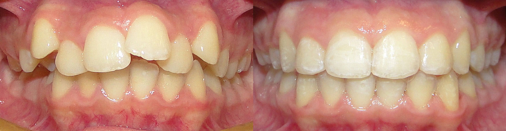 Invisalign-Before-After-3.jpg