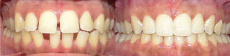 Invisalign-Before-After-6.jpg