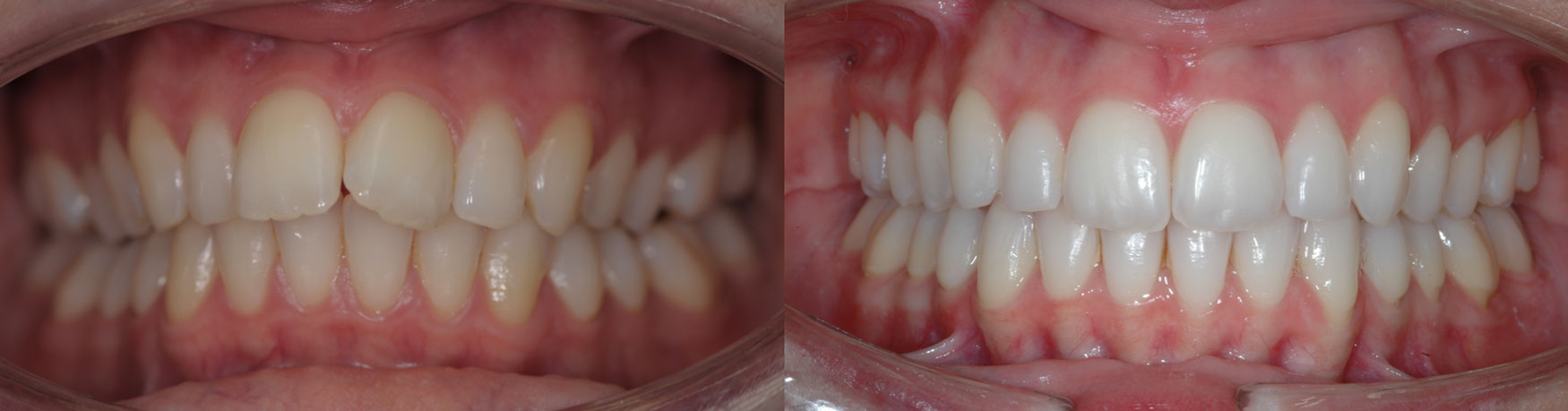 Invisalign-Before-After-13.jpg