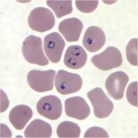 Stained red blood cells; the purple circles are the malaria parasite (Image courtesy  medialab.com )