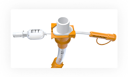 Secure - The proprietary safety complex is designed to provide greater reinforcement and added security against damage to the ETT inflation and suction lines.