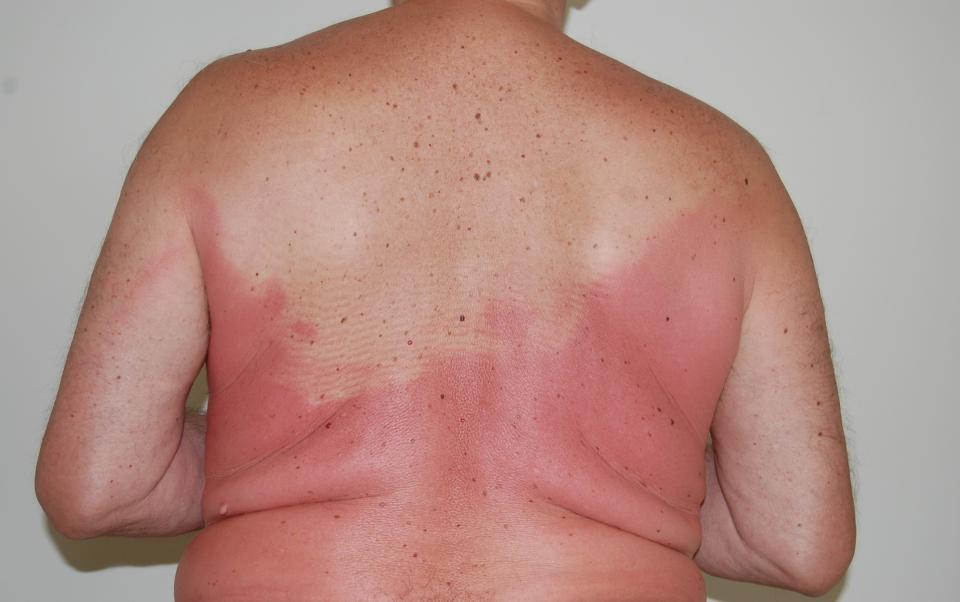 aris_sunburnt_back.jpg