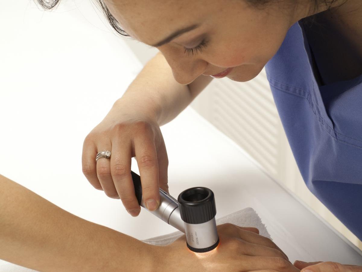 cv_dermatoscope.jpg