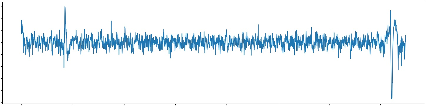 15 seconds unfiltered simultaneous ECG and EEG data-stream with my custom Physiology board and software. The two sharp peaks in EEG indicate strong eye blinks.
