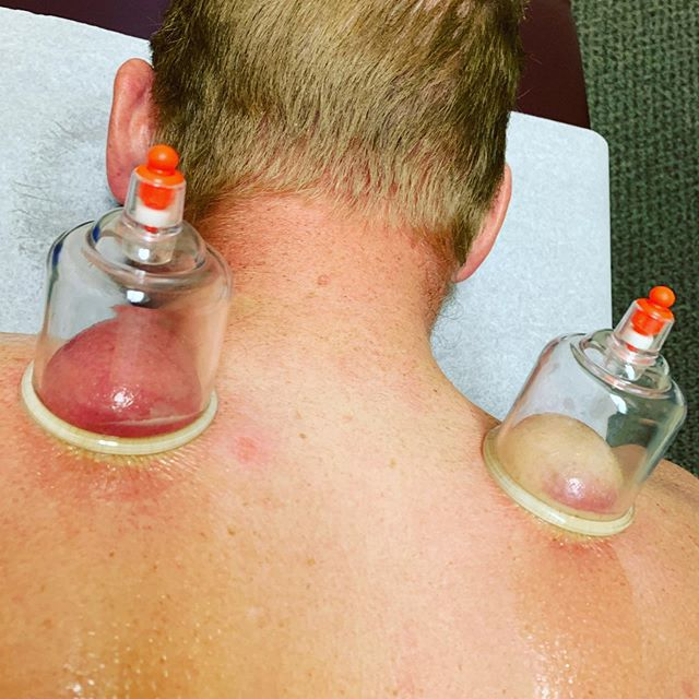 A little cupping action to release the levators. Can you guess which side had been injured and more bothersome? . . . Dark red/purple blood pooling with the cups is a sign of stagnant blood flow due to injury or Chi (energy) imbalance. @belindajodc #improvingbloodflow #chiropractic #medicupping #acupuncturepoints #neckpain