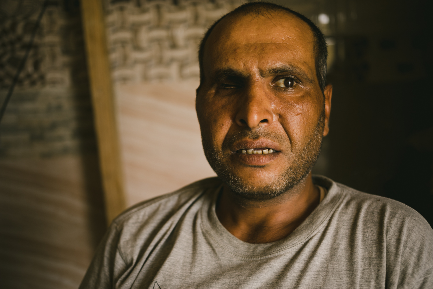 Mazed Tahab, a 39-year-old refugee, lost his eye when a firefight broke out in his neighborhood. He was found injured, and was held in captivity for over a year and deprived of medical treatment. He now tries to find work as a handyman to help his family survive in Lebanon.