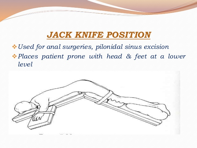 Jack Knife Position -