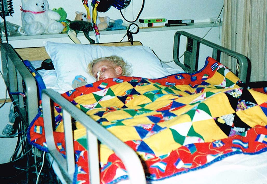 Kody after surgery in 1992