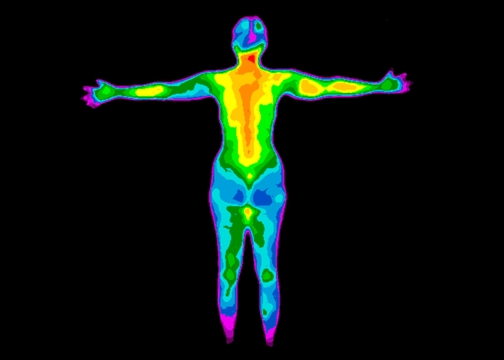 Thermography Whole Body Back