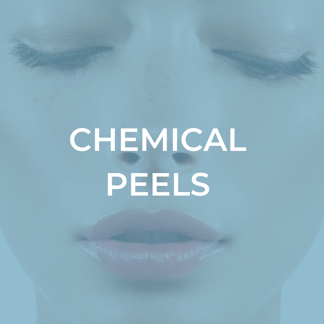 SS SITE CHEMICAL PEELS.png