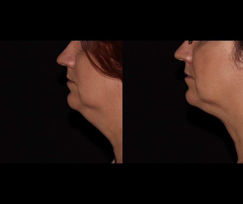 SS CoolSculpting Chin.png