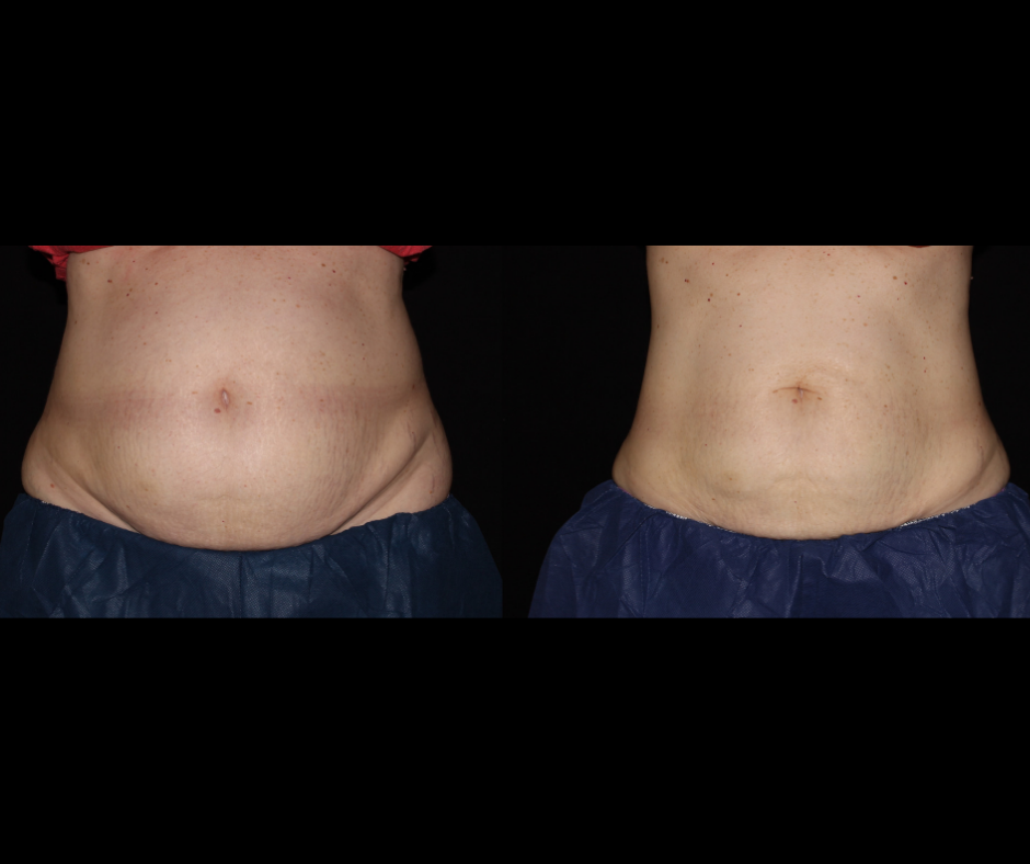 SS CoolSculpting Stomach.png