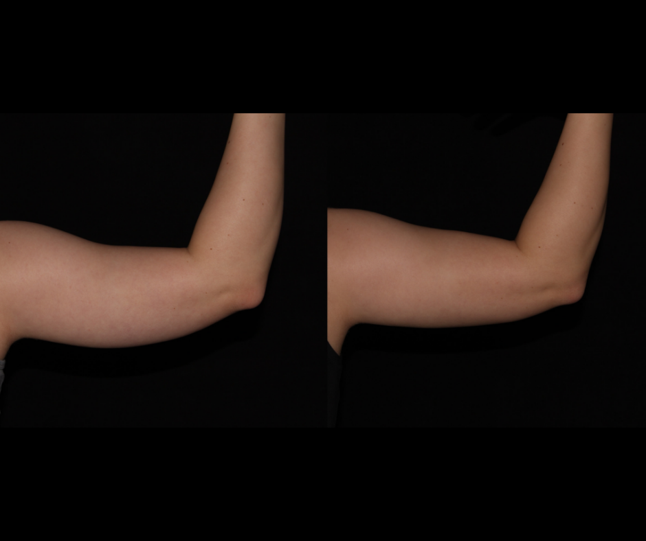 SS CoolSculpting Arms.png