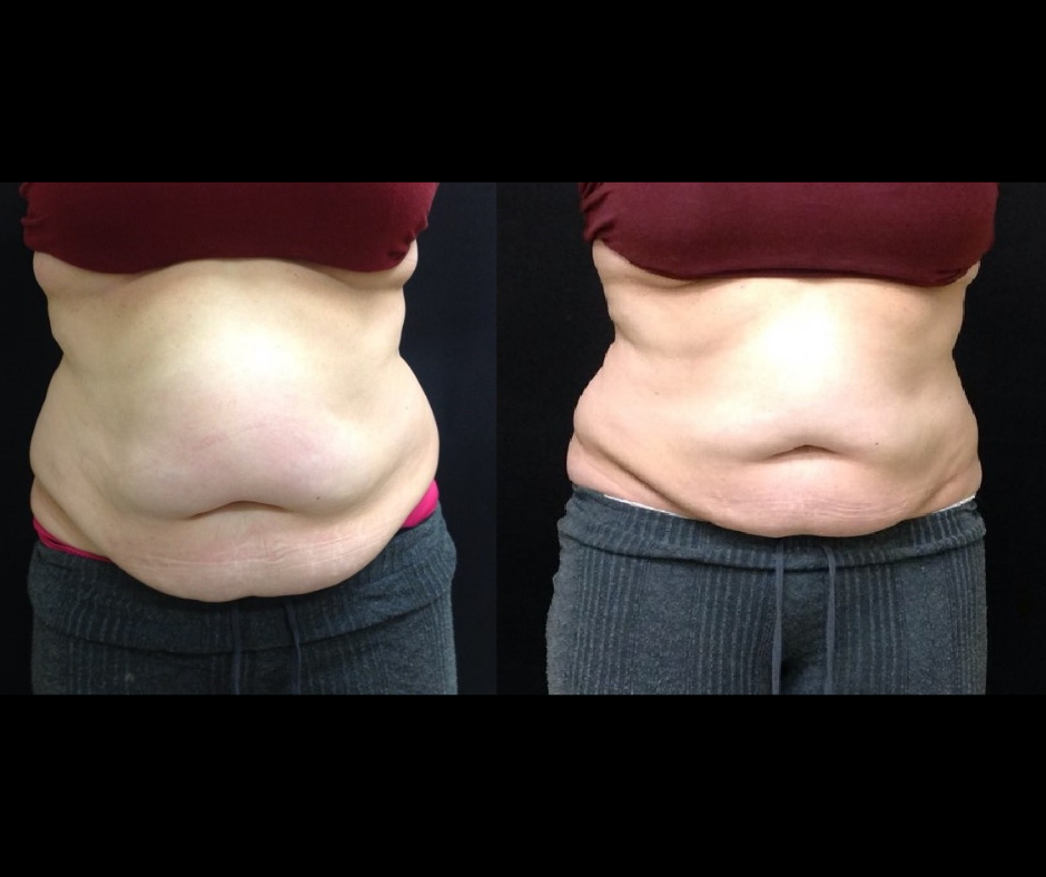 SS CoolSculpting Dramatic Abs.png