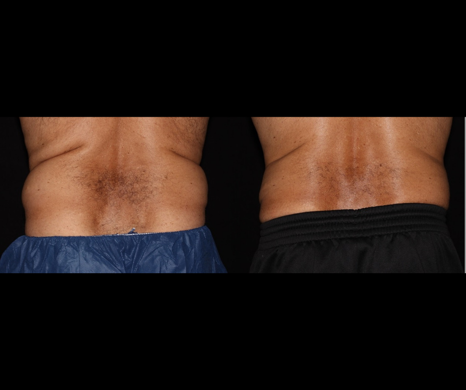 SS CoolSculpting Male Back.png