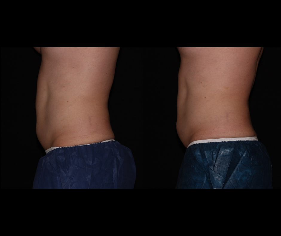 SS CoolSculpting Stomach Side.png