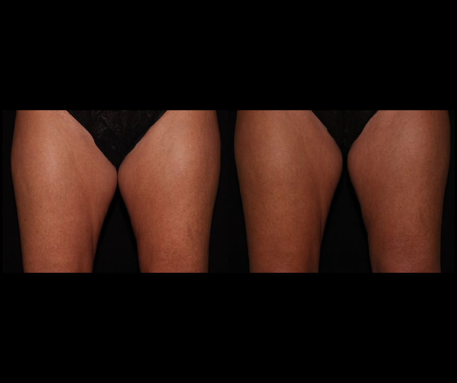 SS CoolSculpting Inner Thighs.png