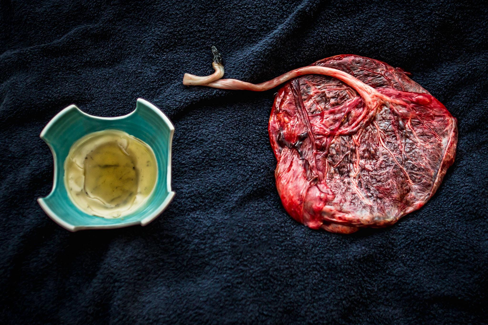 placenta-cord-burning