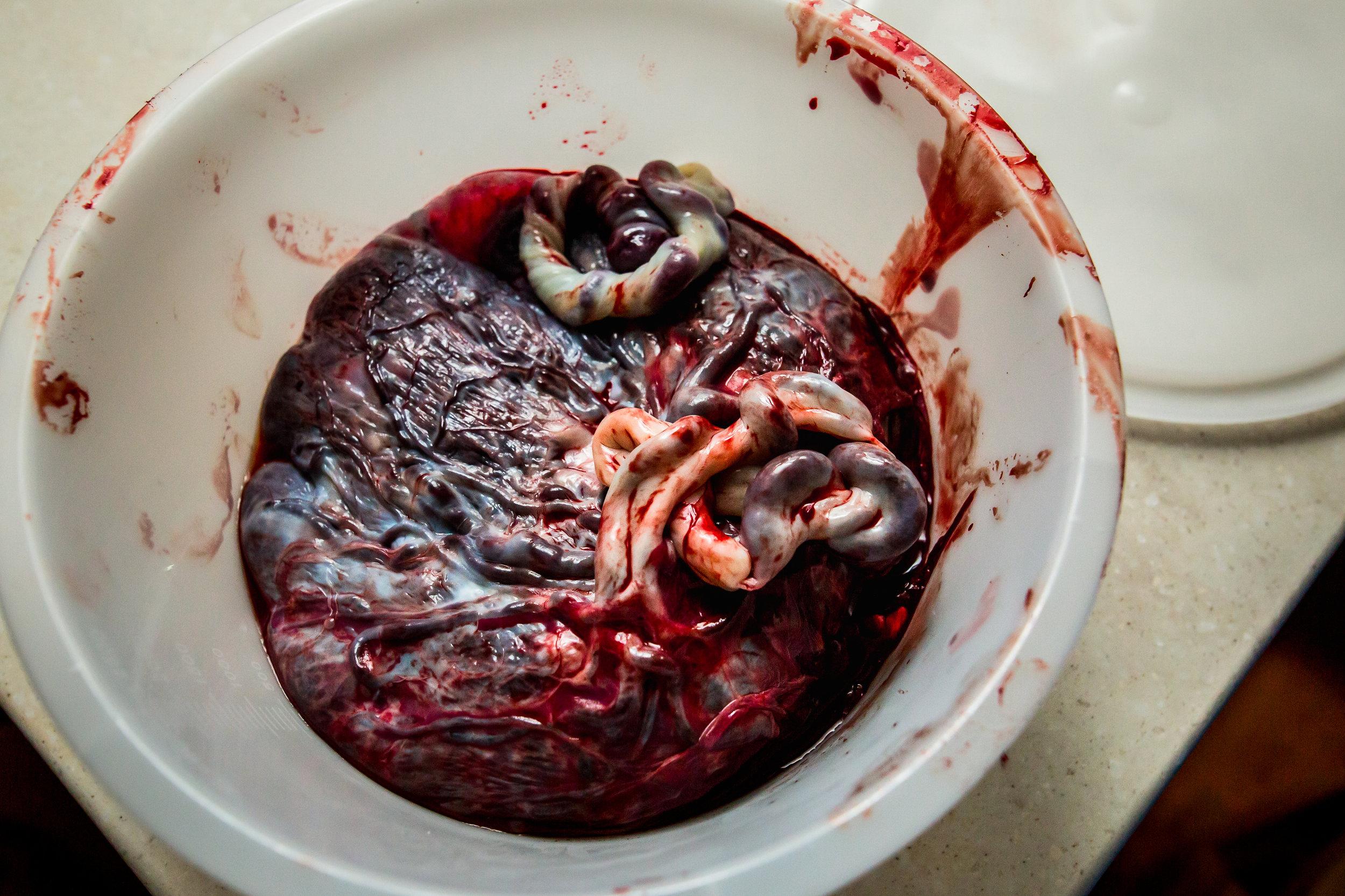 Placenta-after-birth-detroit