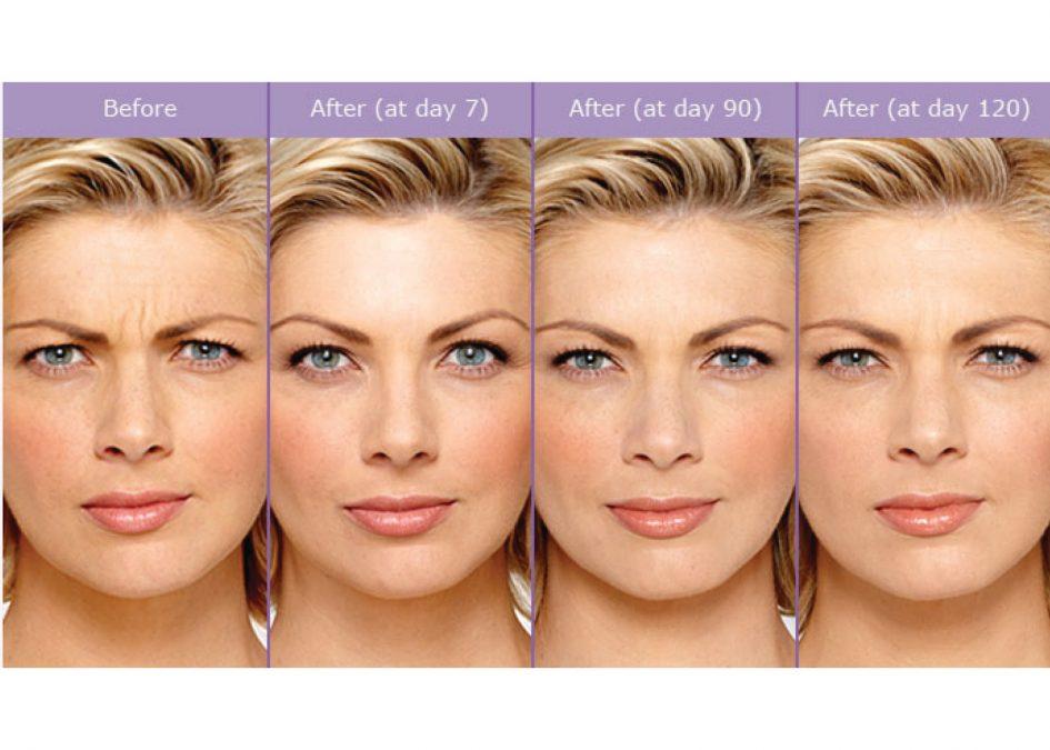 botox-rejuvenating-efect-lines-wrinkles-945x675.jpg