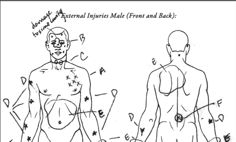 Leo Johnson's autopsy report in great detail.