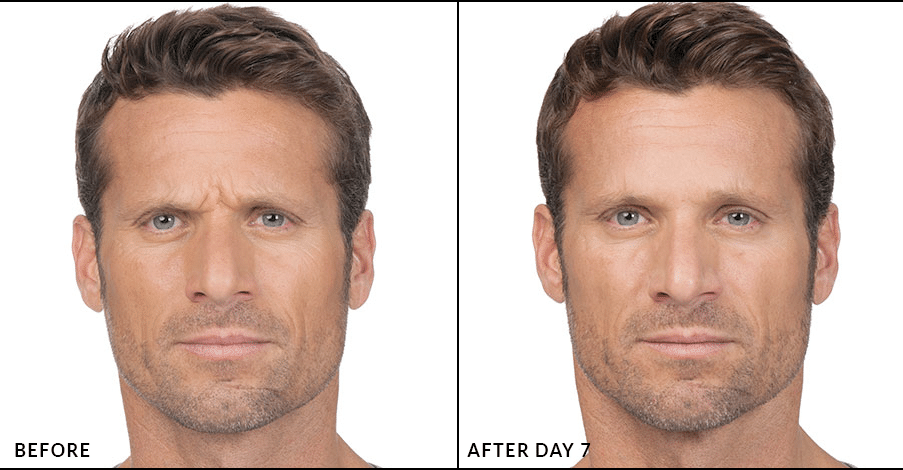 botox-before-after-3.png
