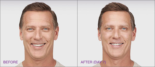 botox-male-before-and-after.jpg