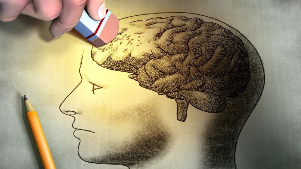 brain-memory-forget-1.jpg
