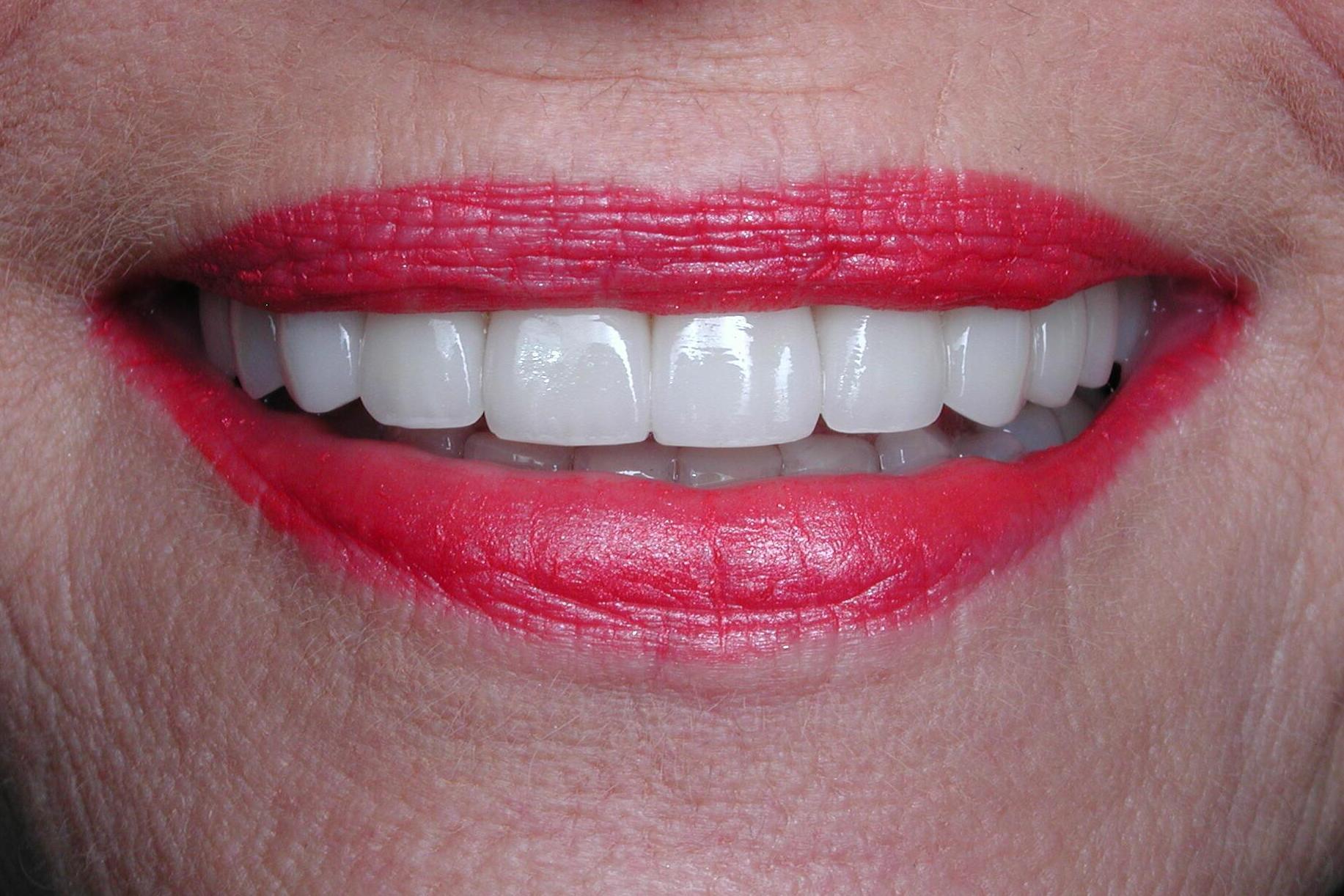 Dental Veneers Sedona