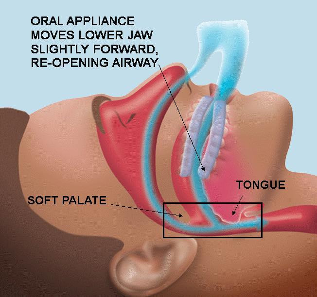 Dental Sleep appliance Sedona.png