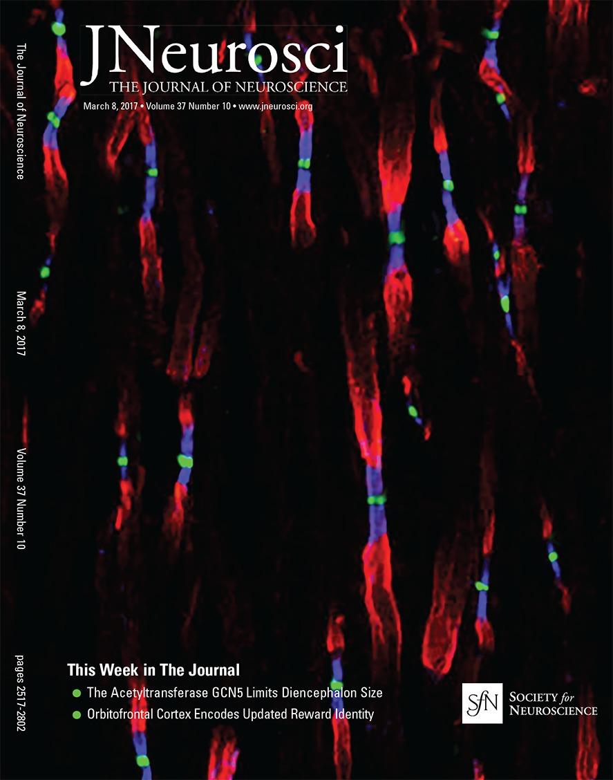 Mawase F, Uehara S, Bastian AJ, Celnik P (2017) - Motor learning enhances use-dependent plasticityJournal of Neuroscience 37:349-361