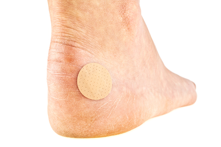 60531471_S-foot_wound_bandage_heel_bandaid_diabetic_ulcer_cut_dry.jpg