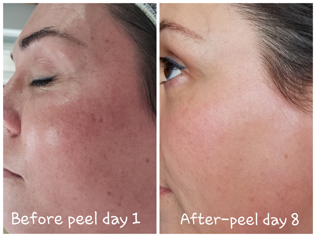 Elaine Brennan Skin Renewal Before and After
