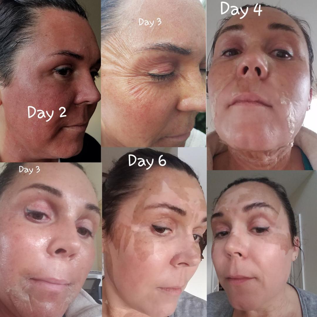 Elaine Brennan Skin Renewal Day 2 - 6