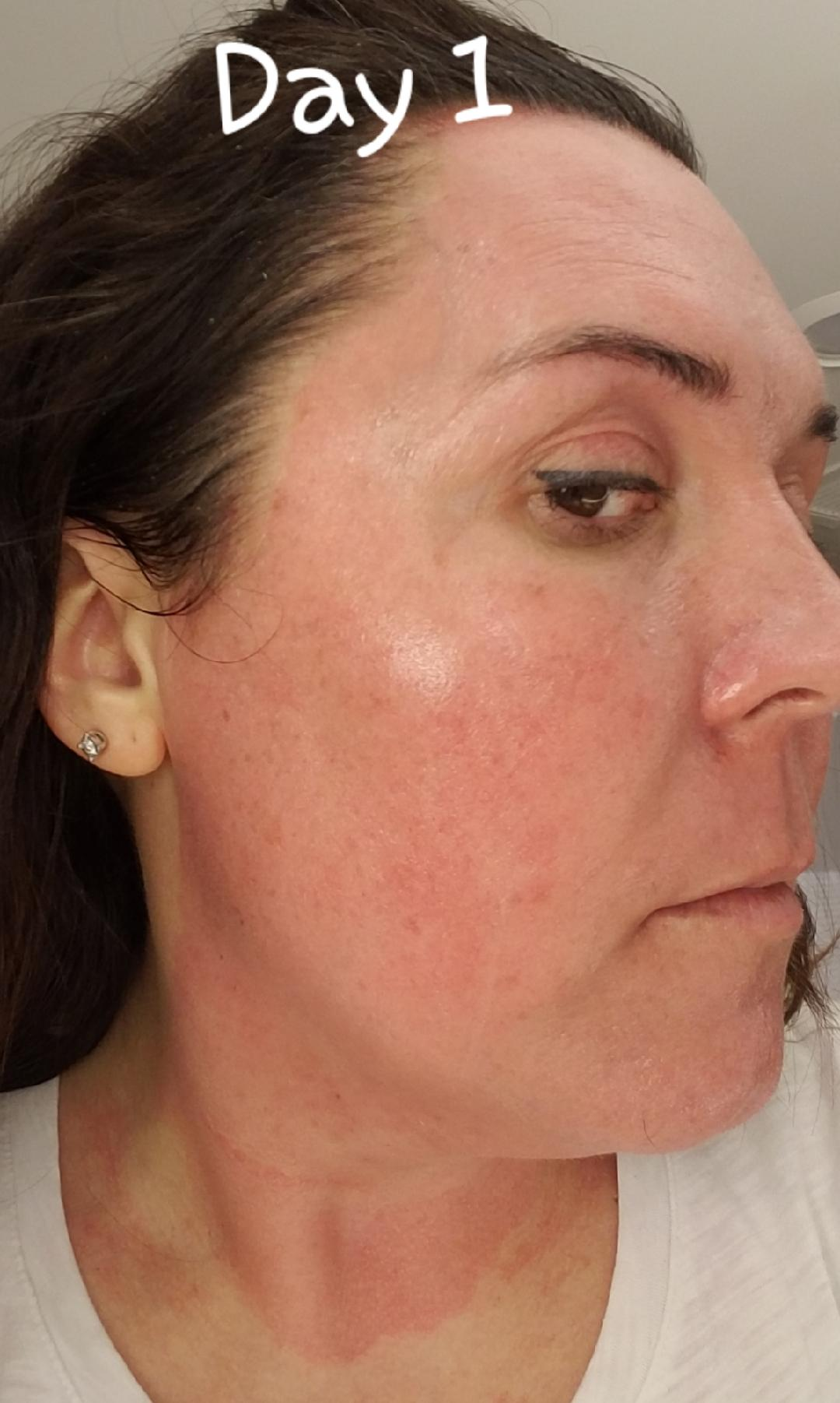 Elaine Brennan Skin Renewal Day 1